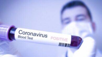 Photo of BPK : Pogoršana epidemiološka situacija, 18 novozoraženih osoba
