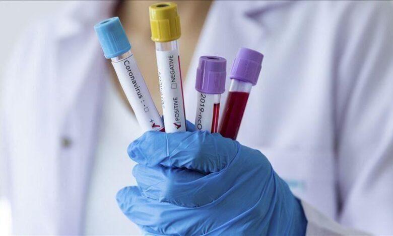 Photo of Jutros nema pozitivnih na koronavirus, preminula ženska osoba